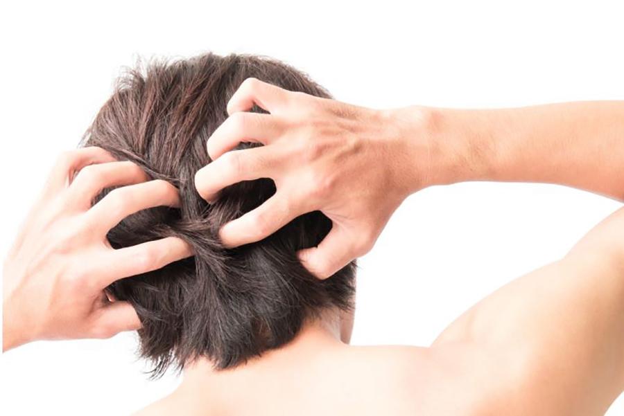 men-scalp-smell