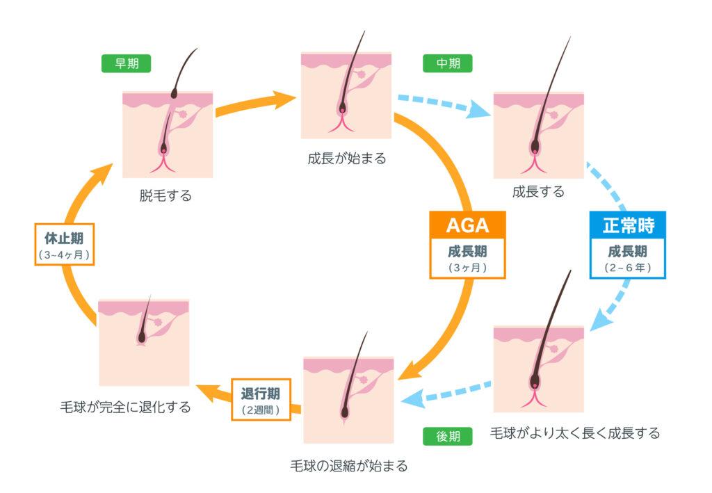 aga-hair-cycle